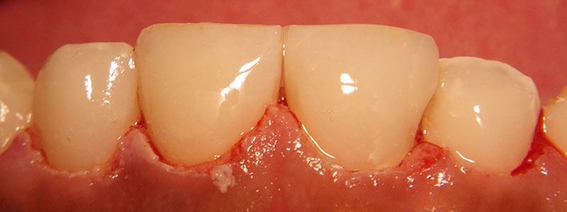 Before and After Patient Photo - Dr. Stephen J. Krawiec, DDS, PC